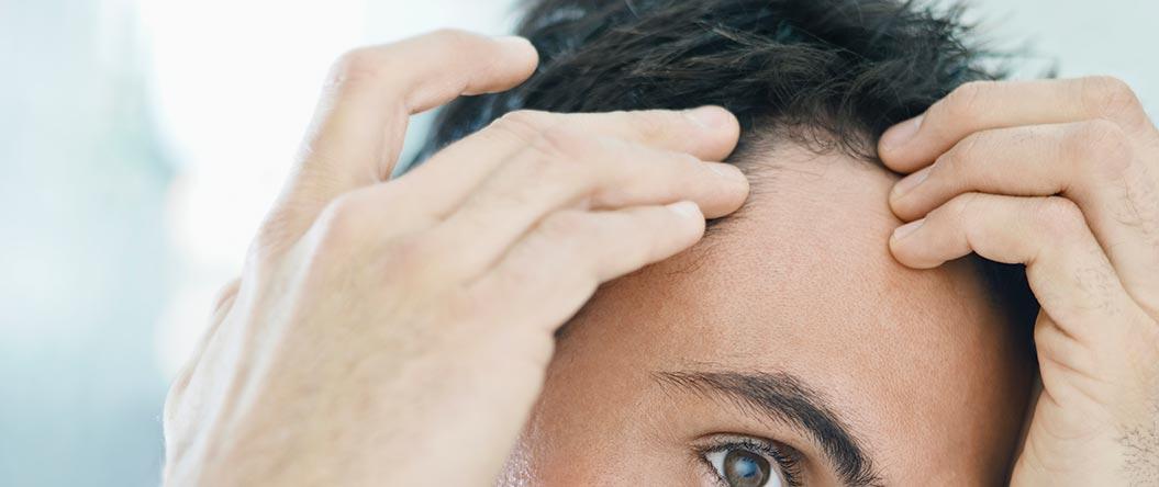 izpadanje-las