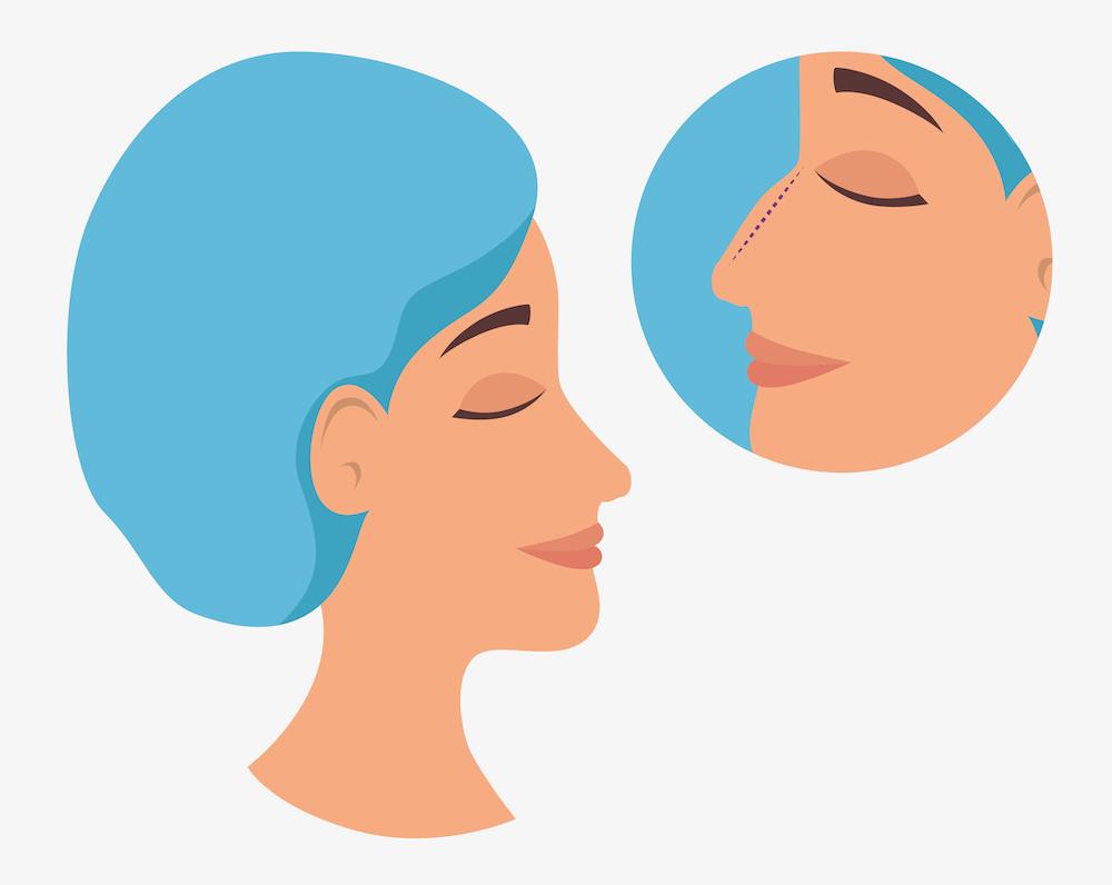 woman plastic surgery process vector illustration design