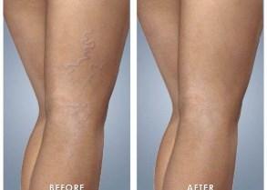 laser-vein-treatment